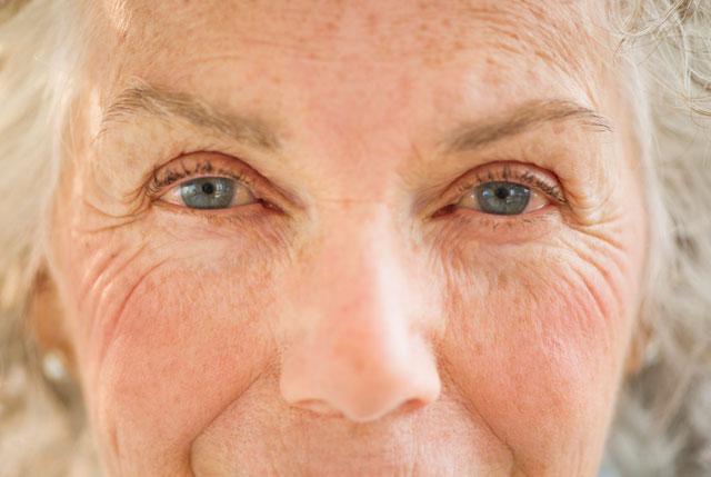 Cataract Surgery 1